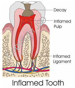 inflammed-tooth
